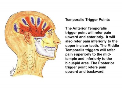 Infographic showing Temporalis Trigger Points
