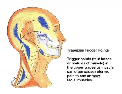 Info graphic showing Trapezius Trigger Points