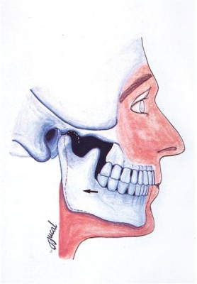 Detailed view of a jaw & skull of a human male