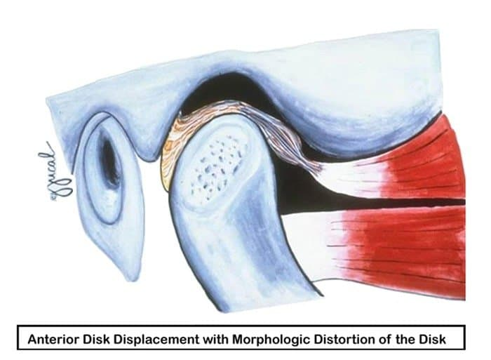 Illustration showing an anterior disk displacement with morphologic distortion of the disk