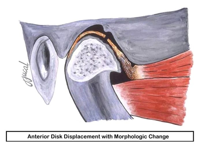 Illustration showing an anterior disk displacement with morphologic change